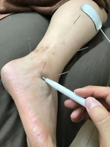 鍼と微弱電流