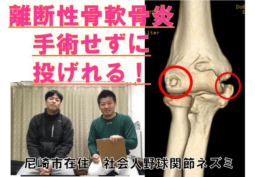 離断性骨軟骨炎治療の感想